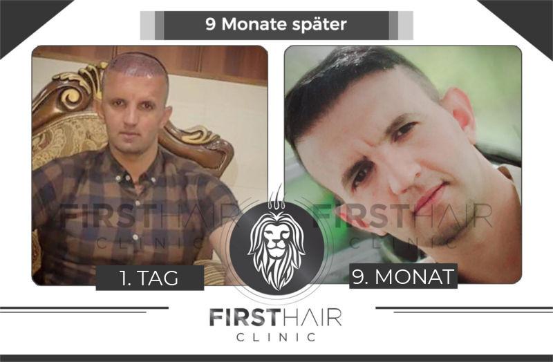 Haartransplantation Deutschland Vorher Nachher