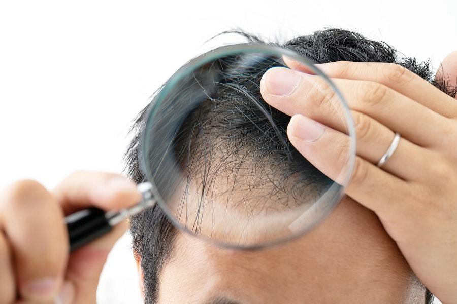 Lohnt sich eine Haartransplantation bei Geheimratsecken wirklich?