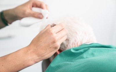 Haare Transplantieren Lassen – FUE Methode