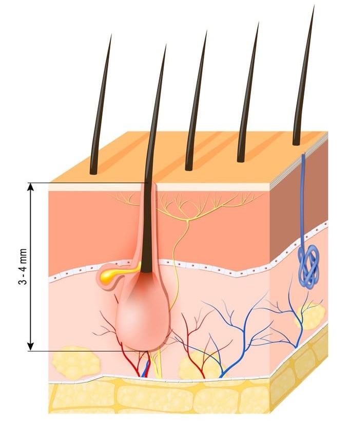 Haarfollikel nach der Haartransplantation - was sind das überhaupt?