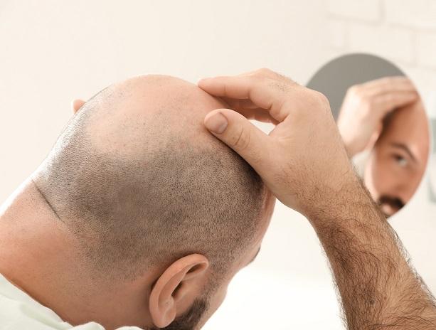 Ergebnisse einer Haartransplantation Welche sind möglich?