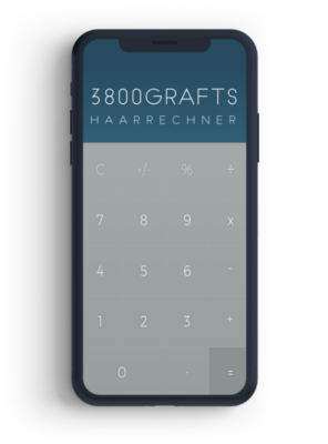 Smartphone, dass einen Rechner für Grafts illustriert.