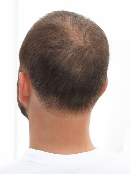 Haartransplantation Jahre - Androgenetische Alopezie
