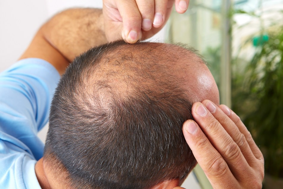 obere Ansicht einer genetischen Alopezie bei einem Mann