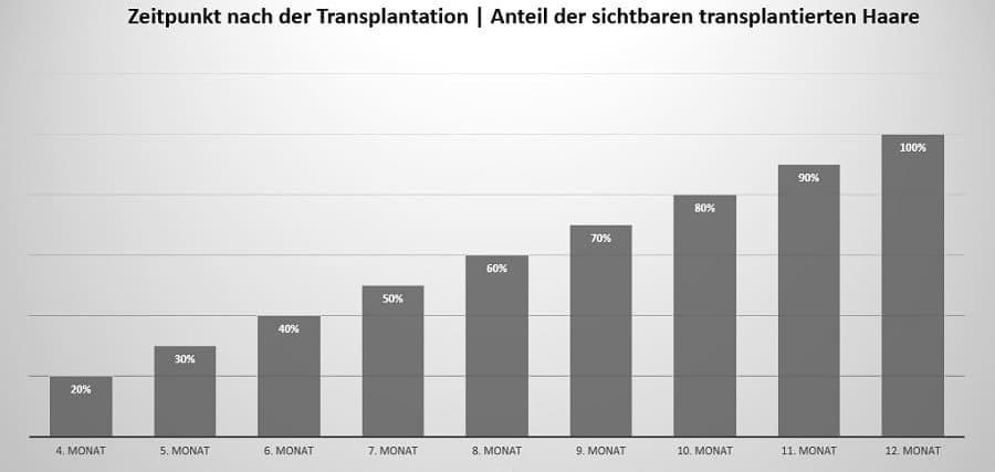 Anteil der sichtbaren transplantierten Haare - Nachsorge nach der Haartransplantation