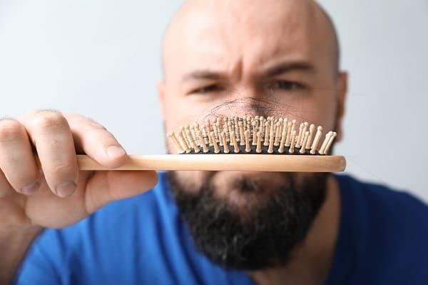 Haartransplantation Sinnvoll