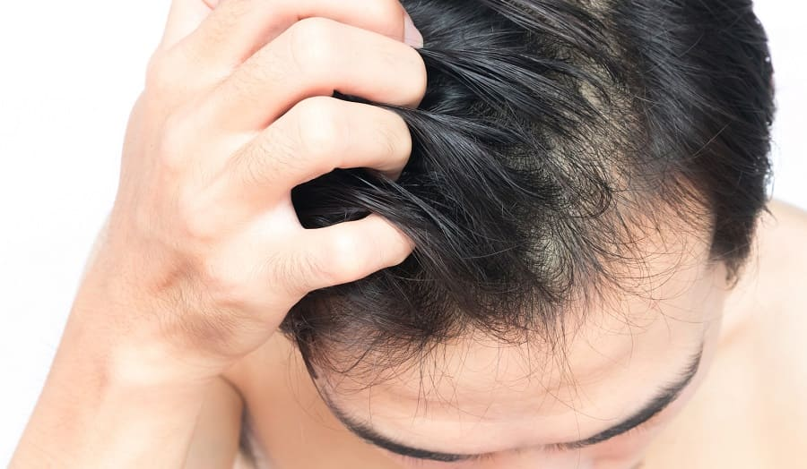 Juckende Kopfhaut nach der Haartransplantation