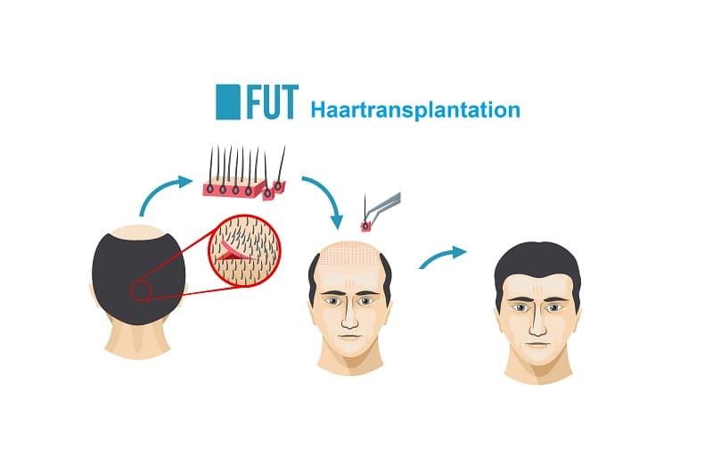 FUT Haartransplantation Methode