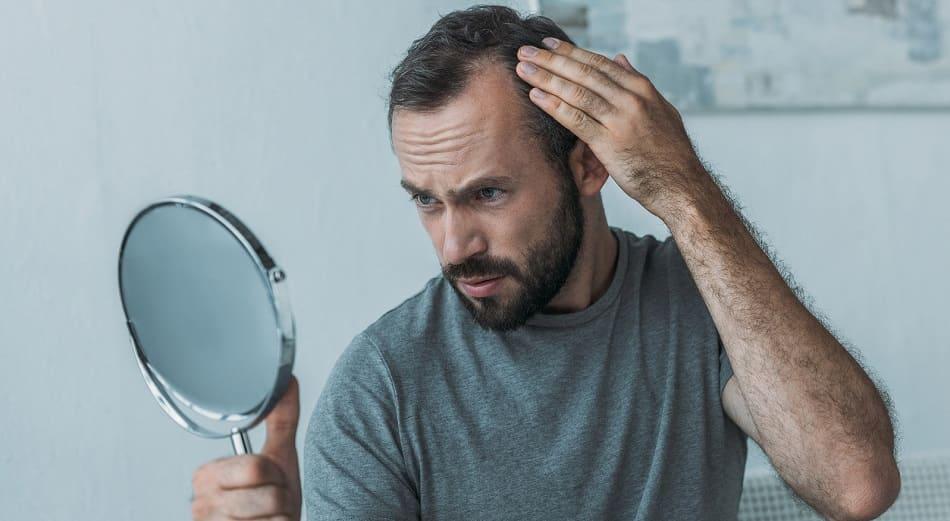 Haarausfall bei Diabetes - Junge Mann schaut sein Geheimratsecken