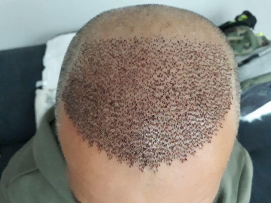 Aufnahme von der oberen Kopfpartie eines Patienten mit Krusten