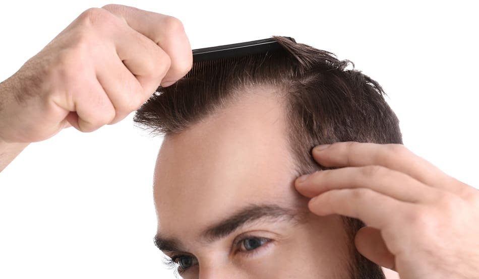 Man kaemmt seine Haare um seinen Haarausfall zu begutachten