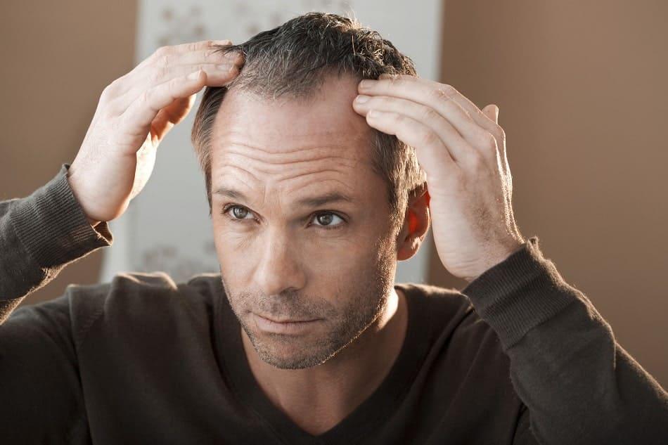Mann mit Haarausfall fasst sich an die Geheimratsecken
