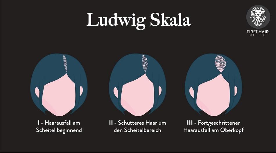 Darstellung der Ludwig Skala