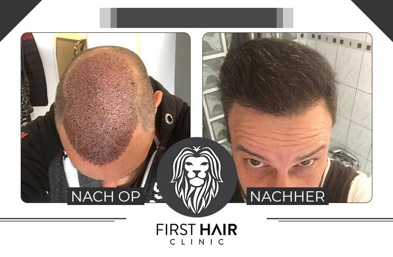 Der Vergleich einer Haartransplantation nach der OP und nach mehreren Wochen