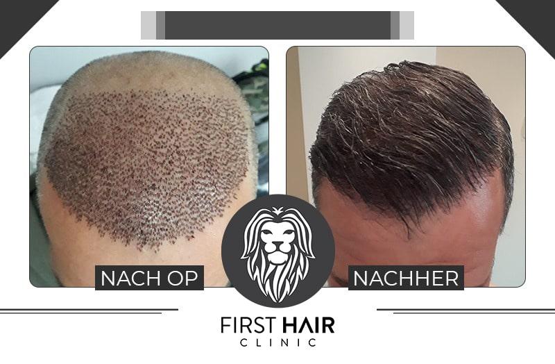 Vorher-Nachher Bild einer Haartransplantation