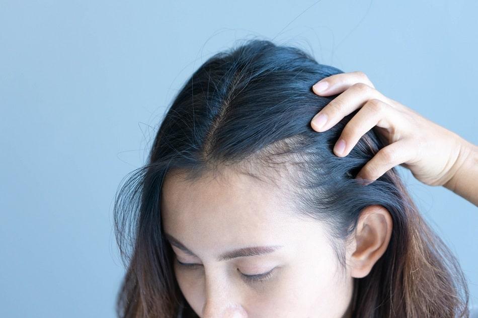 Frau mit erblich bedingtem Haarausfall zeigt ihre geheimratsecken