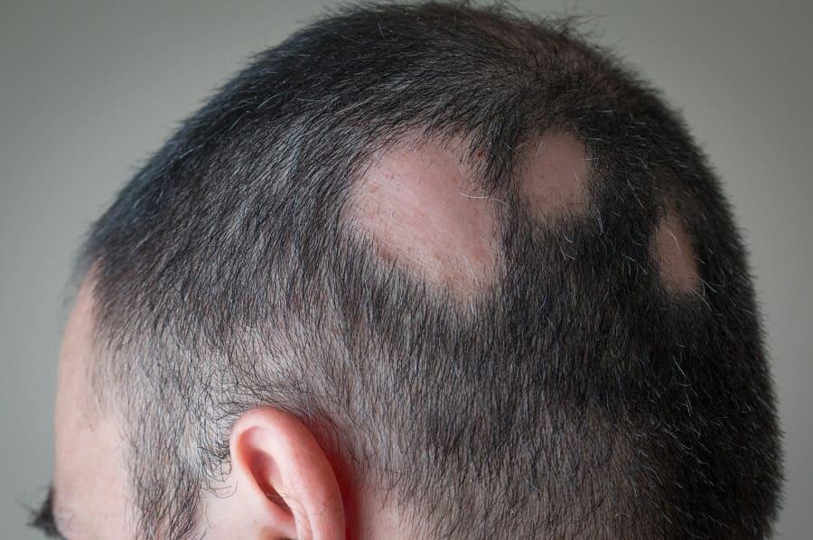 Kreisrunder Haarausfall – Alopezia Areata