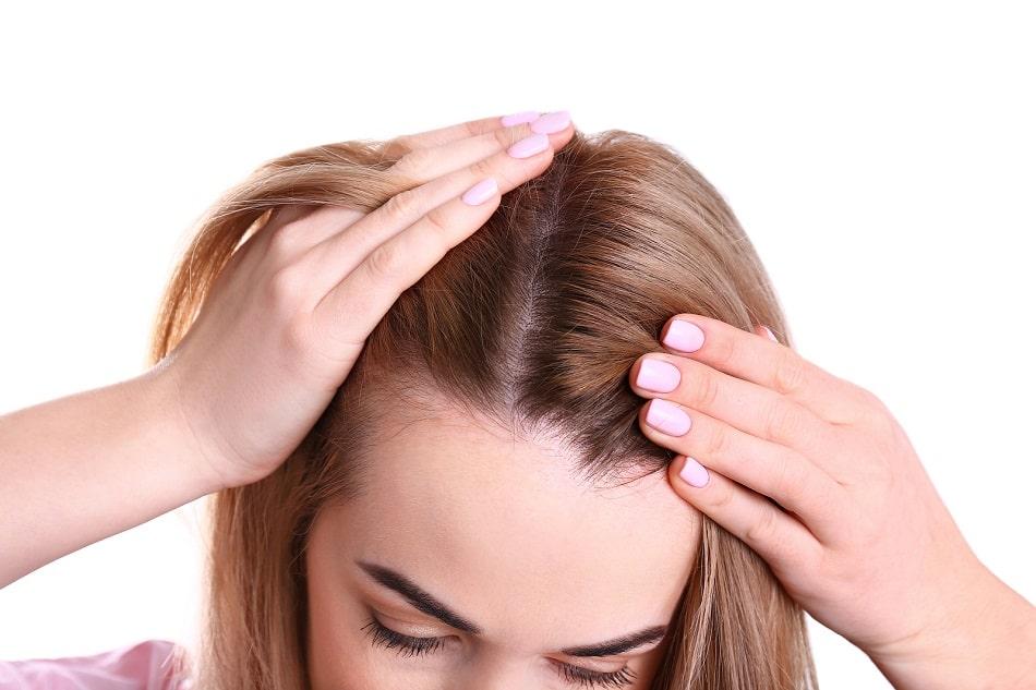 Frau mit androgenetischer alopezie fasst sich in die Haare
