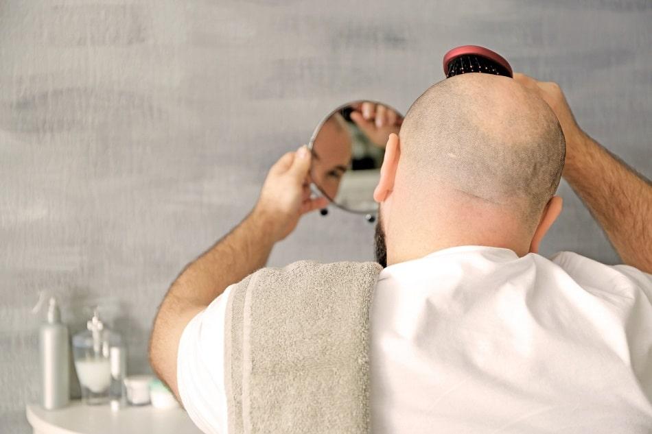 Mann mit erblich bedingtem Haarausfall hält sich einen Spiegel vor den Kopf