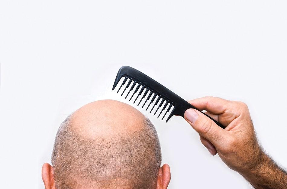 Mann mit rundem Haarausfall hält einen Kamm über seinen Kopf