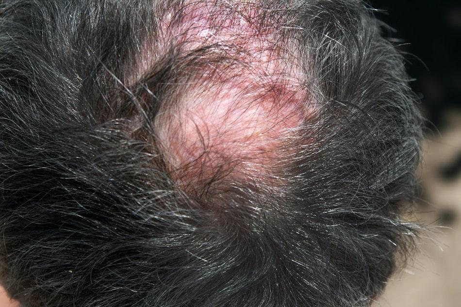 Hinterkopf eines Mannes mit Folliculitis Decalvans