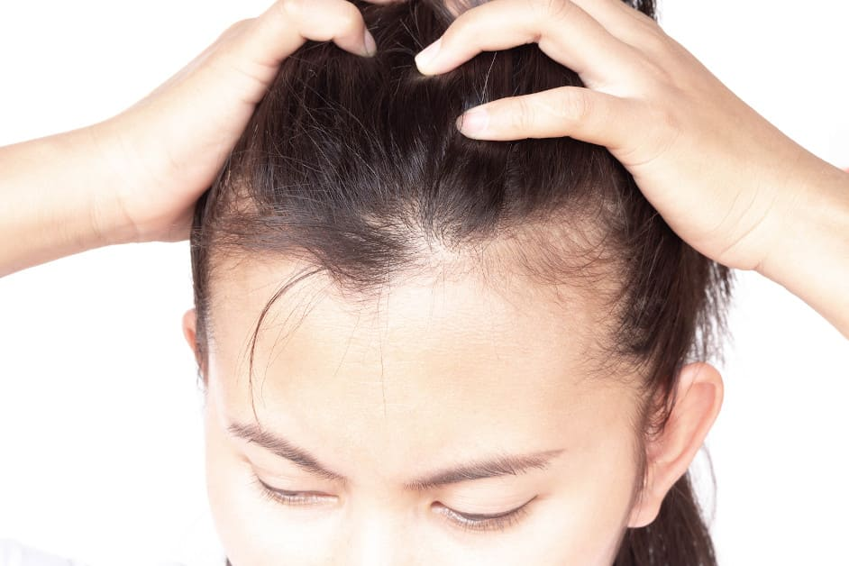 Frau zieht ihre Haare mit beiden Händen zurück, um die miniaturisierten Haare zu zeigen