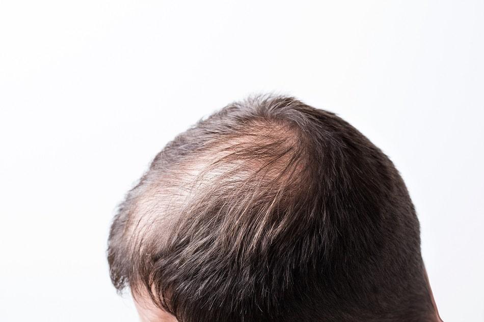 Seitliche Ansicht eines Kopfes mit diffusem Haarverlust