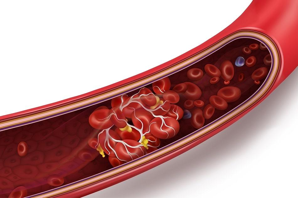3D Darstellung einer Thrombose in der Vene