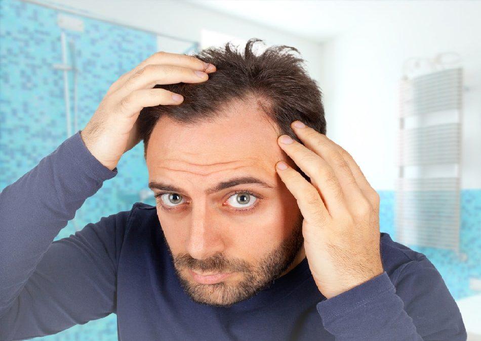 Wenn es auf der einen Seite licht wird: Einseitiger Haarausfall kann verschiedene Ursachen haben