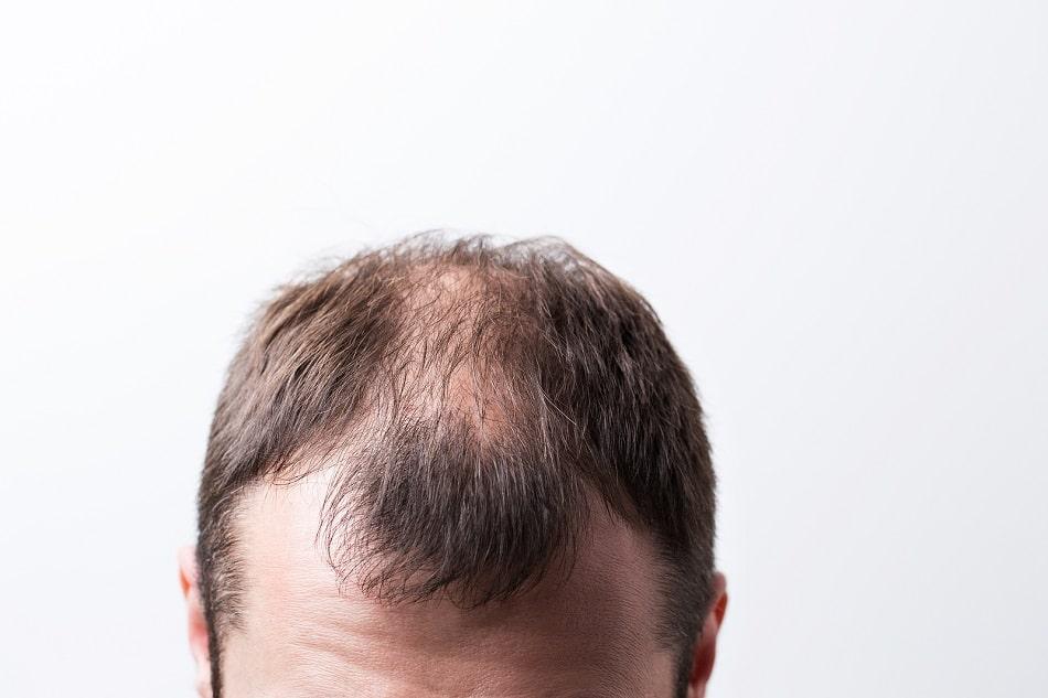 Lohnt sich eine Haartransplantation: Ja oder Nein?