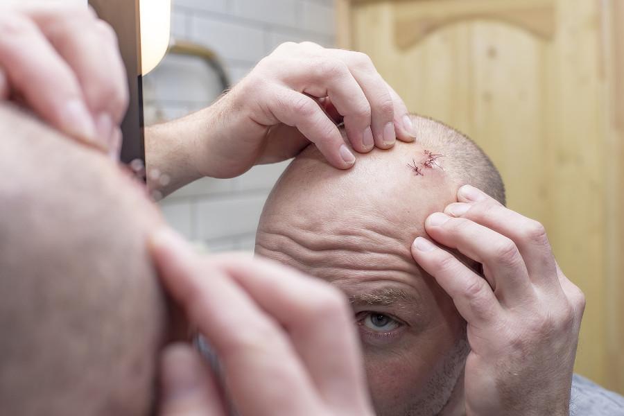 Mann kontrolliert Narbe am Kopf im Spiegel