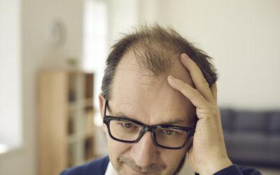 Haarausfall und Gene: Muss man sich damit abfinden?