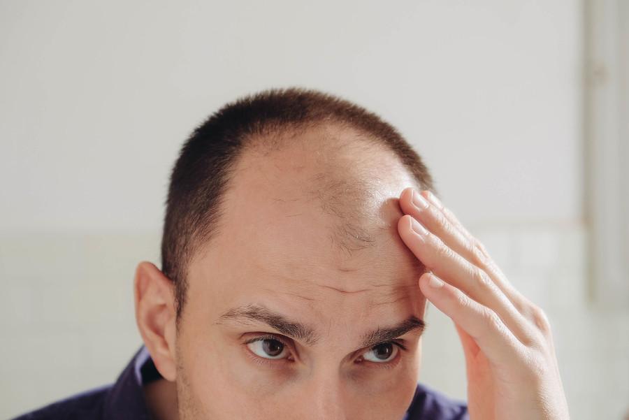 Mann kontrolliert Haarausfall und erwägt Spritzentherapie