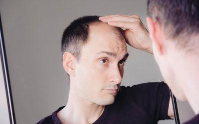 Lässt sich Haarausfall rückgängig machen?