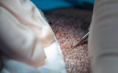 Ist eine Haartransplantation schmerzhaft? Was Sie wissen sollten