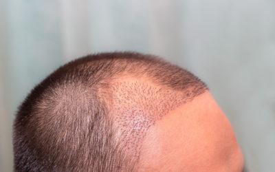 Wie Sie nach einer Haartransplantation Infektionen verhindern