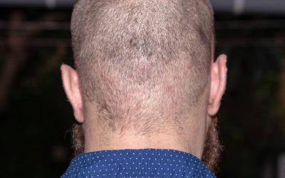 Entzündungen nach der Haartransplantation mit Pflege vermeiden