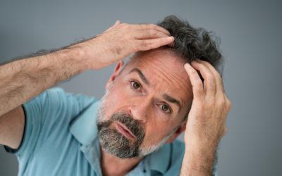 Müssen für die Haartransplantation Voraussetzungen erfüllt werden?