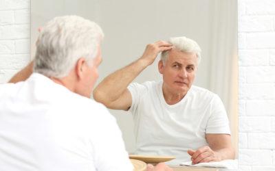 Erfolgreiche Haartransplantation erfordert zwei Sitzungen