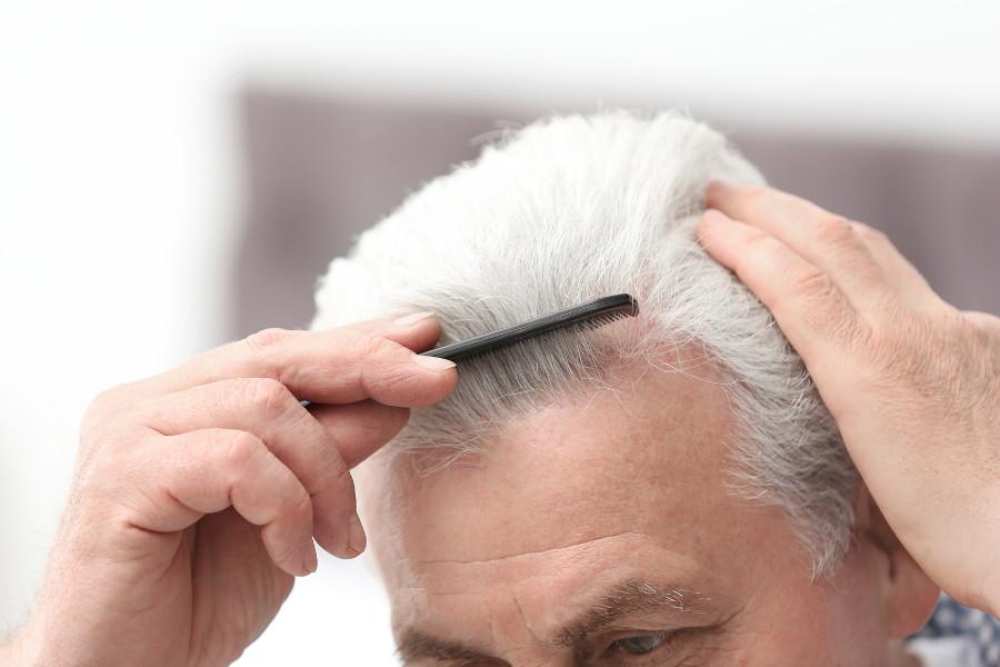 Mann kämmt nach erfolgreicher Haartransplantation die Haare