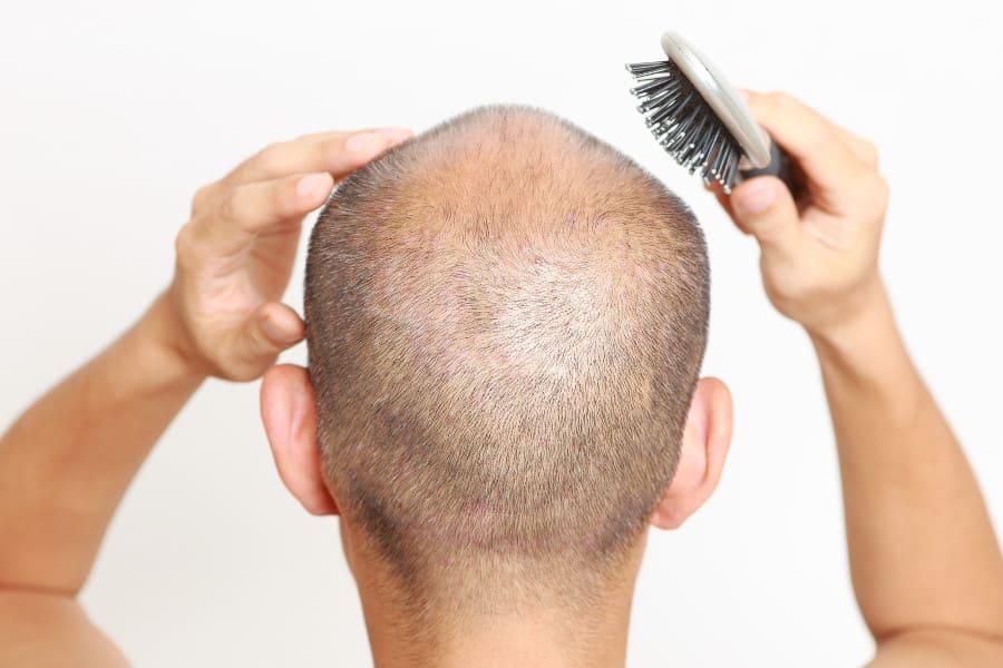 Mann mit Glatze von hinten mit Bürste in der rechten Hand