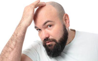 Wie sieht es mit den Haartransplantation Chancen aus?