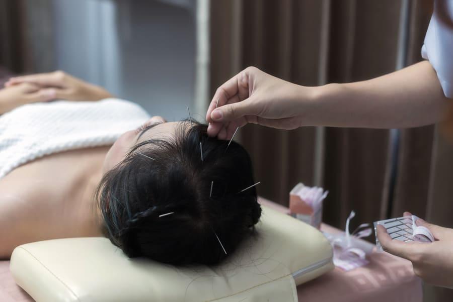 Arzt Einfügen Akupunkturnadeln auf Frau Haar