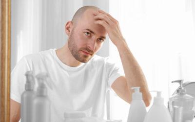 Haartransplantation bei Vollglatze – möglich und sinnvoll?