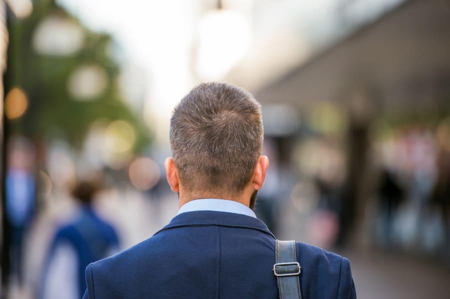 Spenderbereich -Ist eine schonende Haarentnahme möglich?