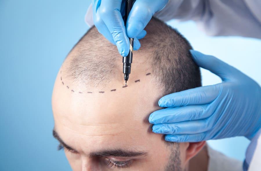 Auf eine Hohe Stirn wird vor der Haartransplantation eine Haarlinie eingezeichnet