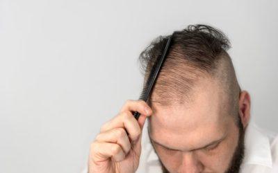 Haartransplantation bei feinem Haar möglich?