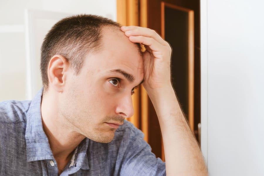 Kann eine Hohe Stirn mit einer Haartransplantation beseitigt werden?