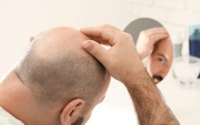 Ist bei einer Halbglatze eine Haartransplantation möglich?