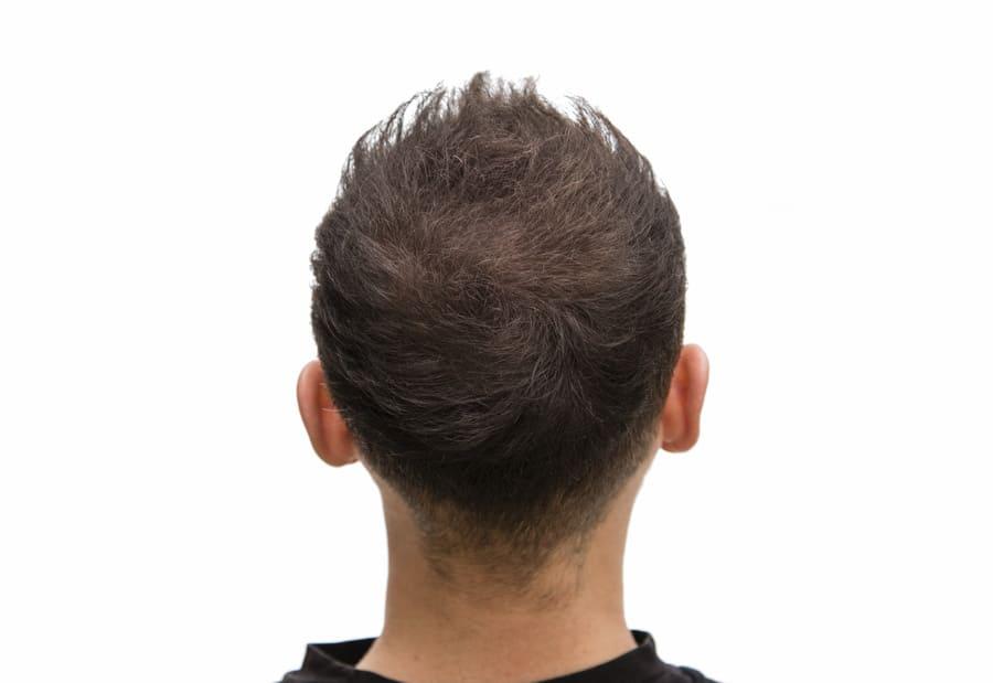 Hinterkopf als Spenderbereich für Haartransplantation Langzeitergebnisse